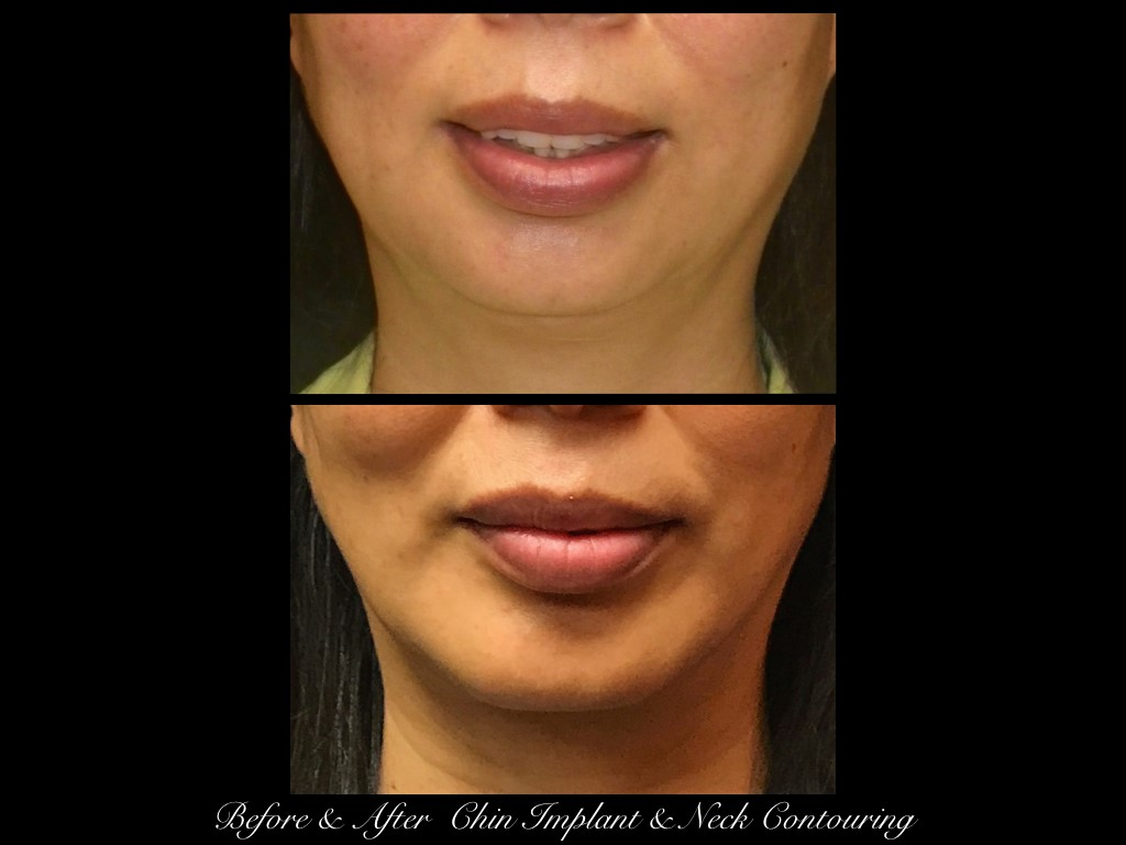 before and after view of woman's chin implant and neck contouring