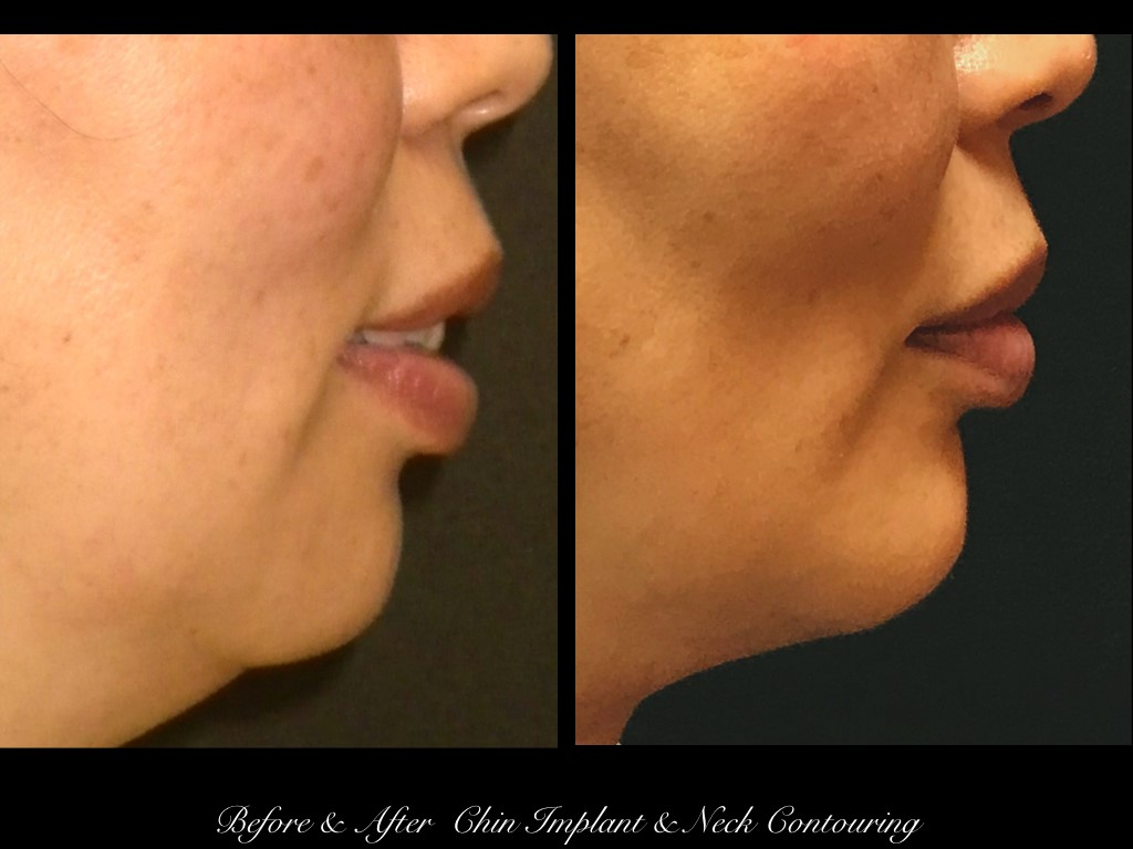 side view of woman's chin before and after chin implant and neck contouring