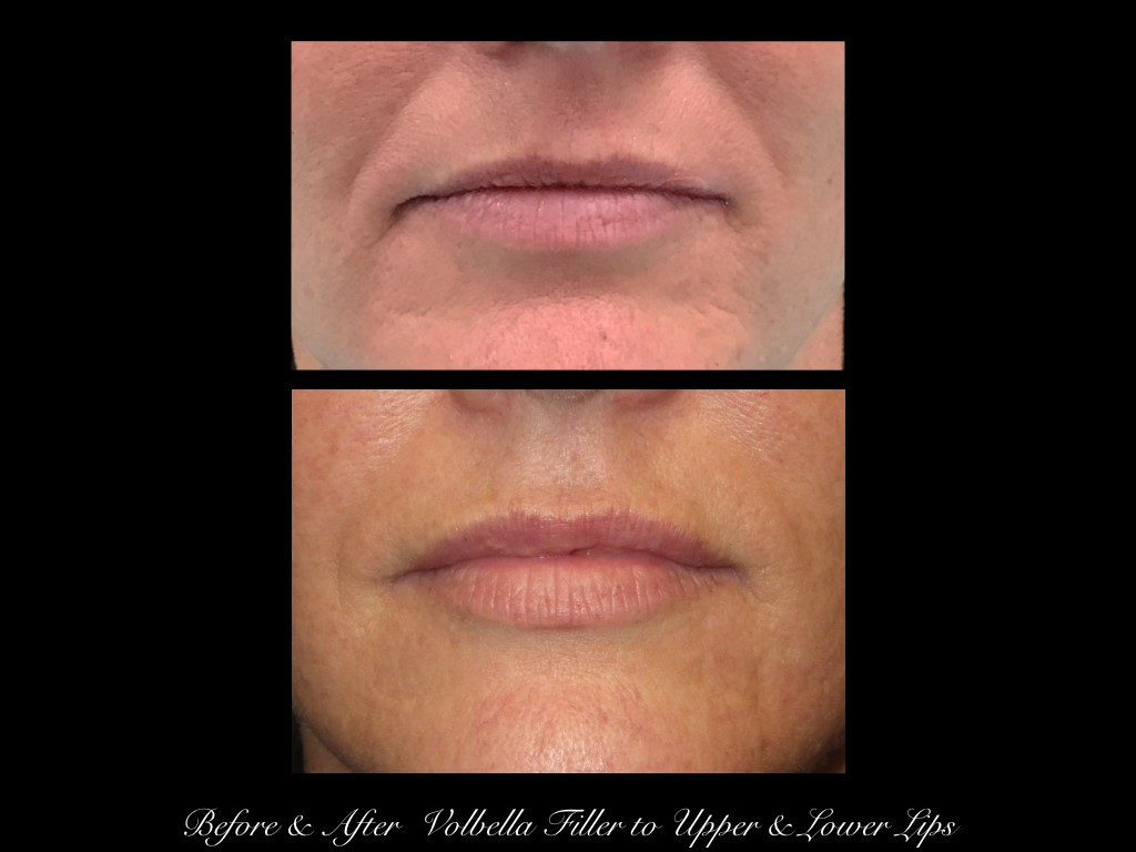 mouth before and after Polbella filler in upper and lower lips