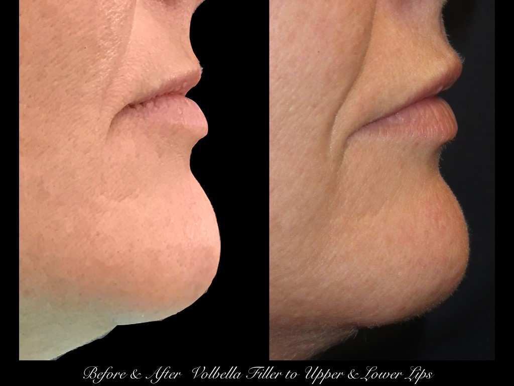 before and after side view of Polbella filler in upper and lower lips