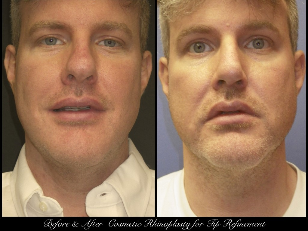 before and after photos of man with cosmetic rhinoplasty for tip refinement