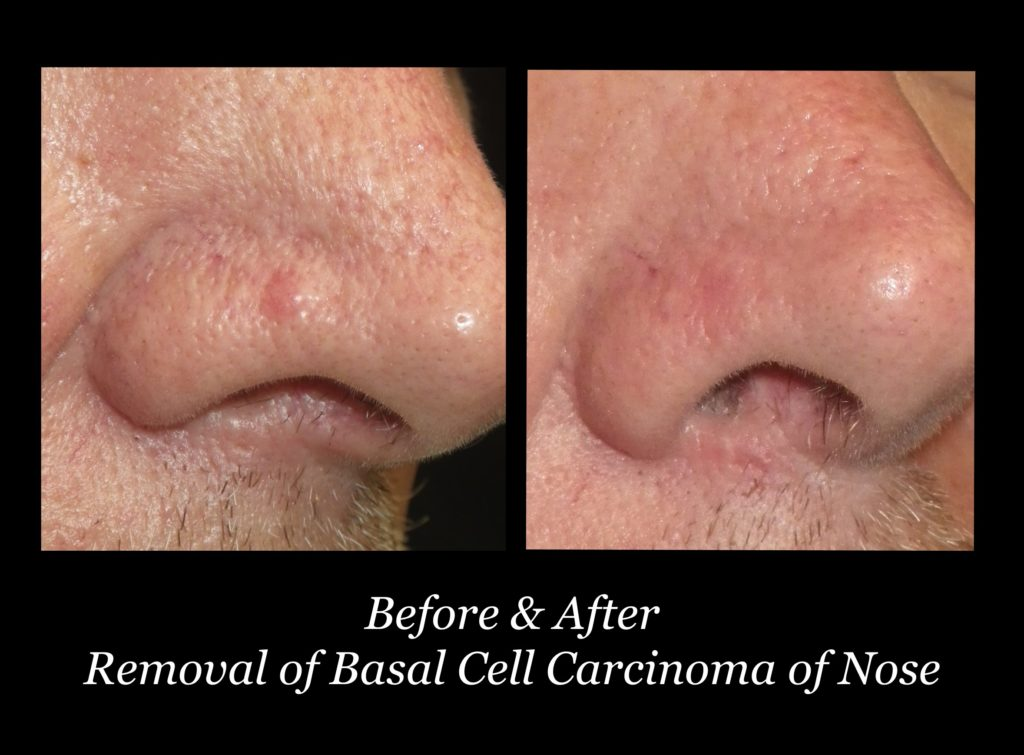 before and after removal of basal cell carcinoma on a man's nose