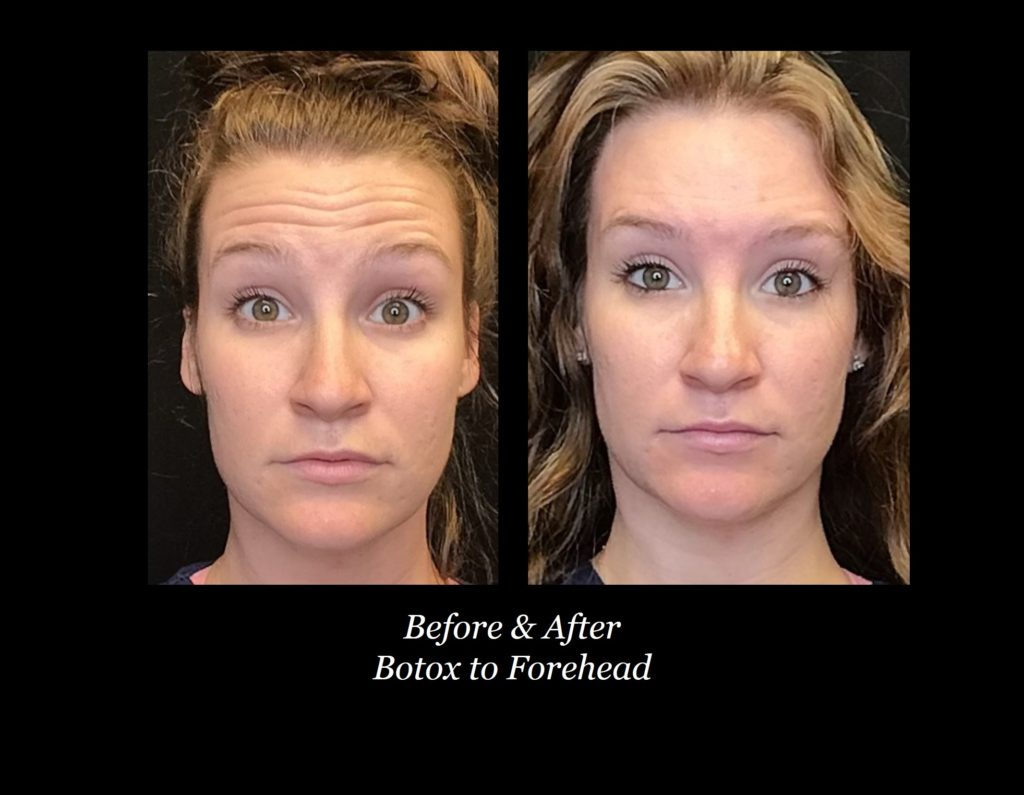 before and after photos of woman with forehead botox