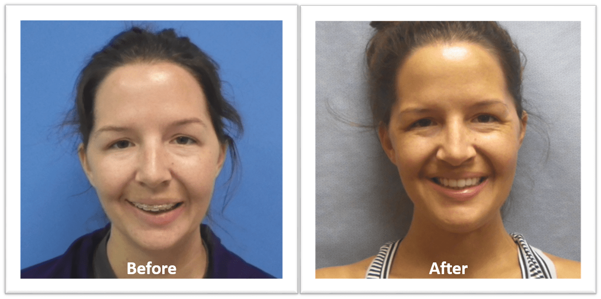 before and afters of woman with jaw surgery