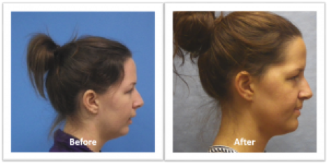 side view before and after photos of woman with jaw surgery