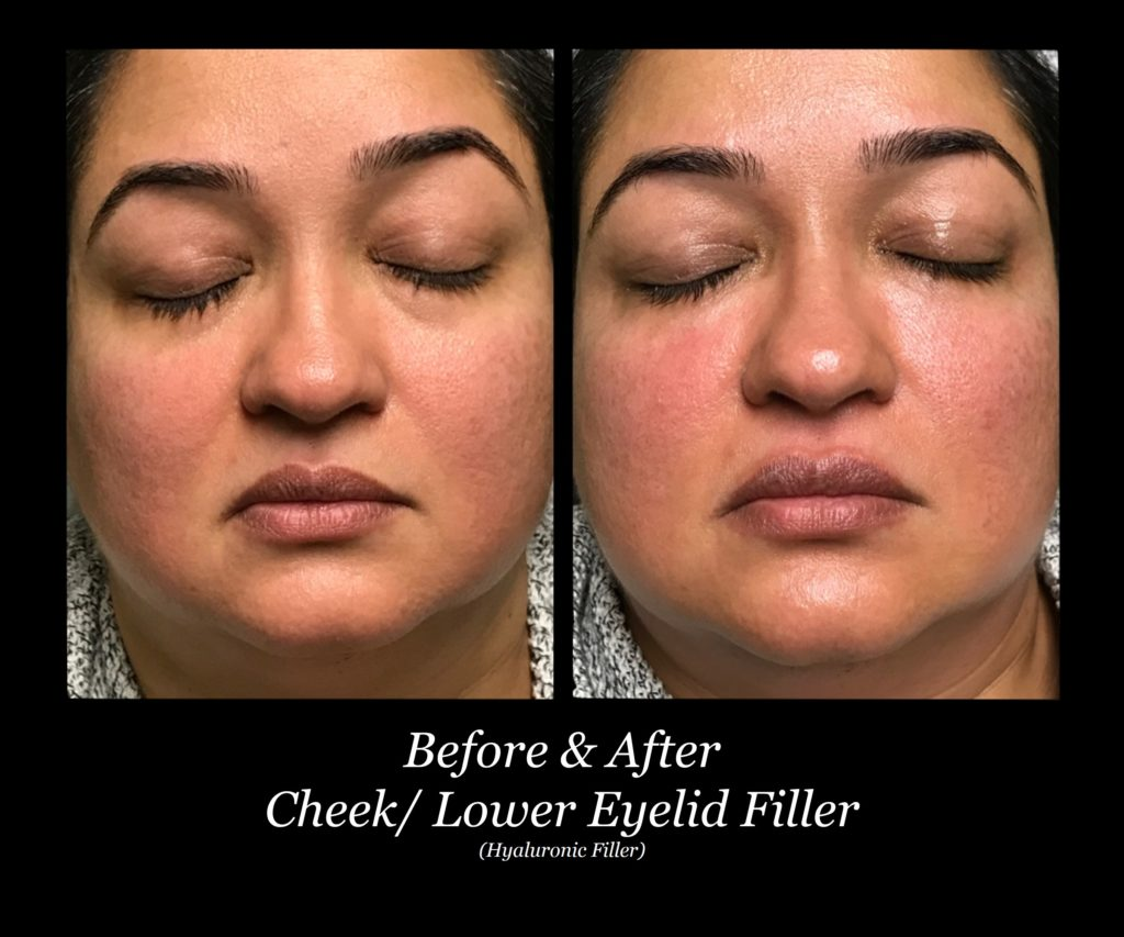 before and after of woman's face with cheek and lower eyelid filler