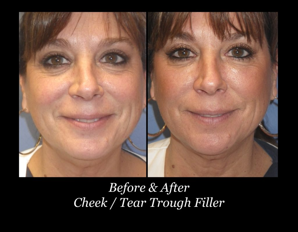 before and after woman's cheek and tear through filler