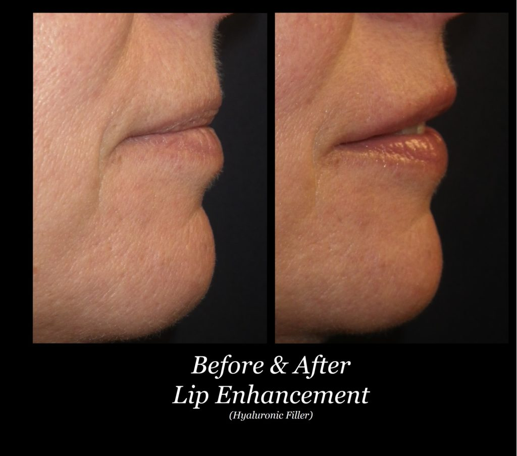 side view of woman's lip enhancement before and after