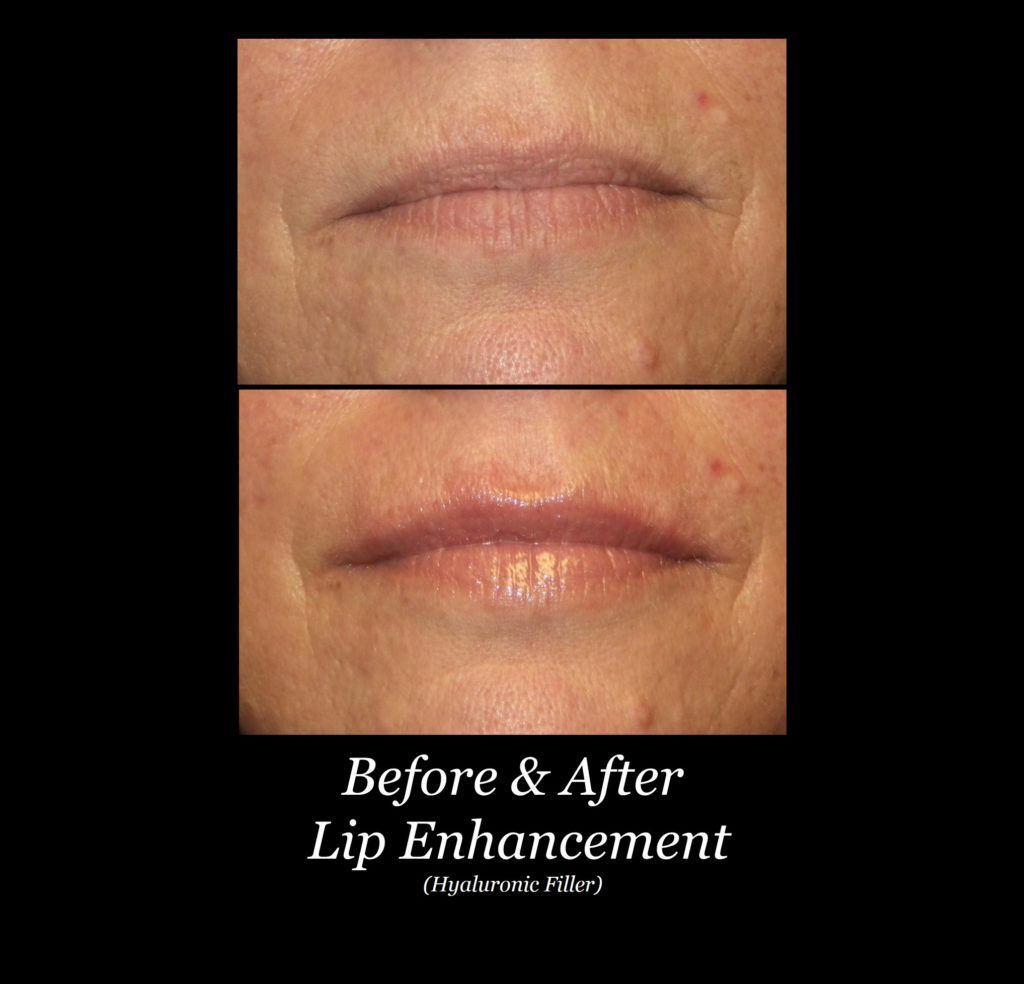 before and after photo of woman's lip enhancement