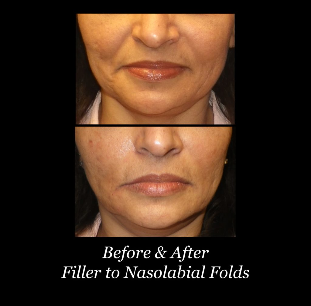 before and after filler to nasolabial folds on woman