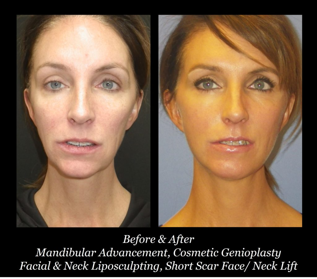 before and after of woman with mandibular advancement, cosmetic genioplasty, facial and neck lipsculpting and short scar face/neck lift