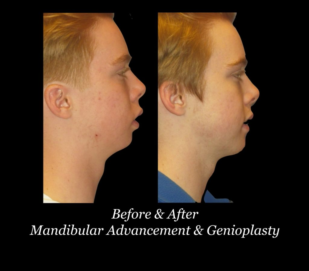 before and after side view of boy's face with mandibular advancement and genioplasty