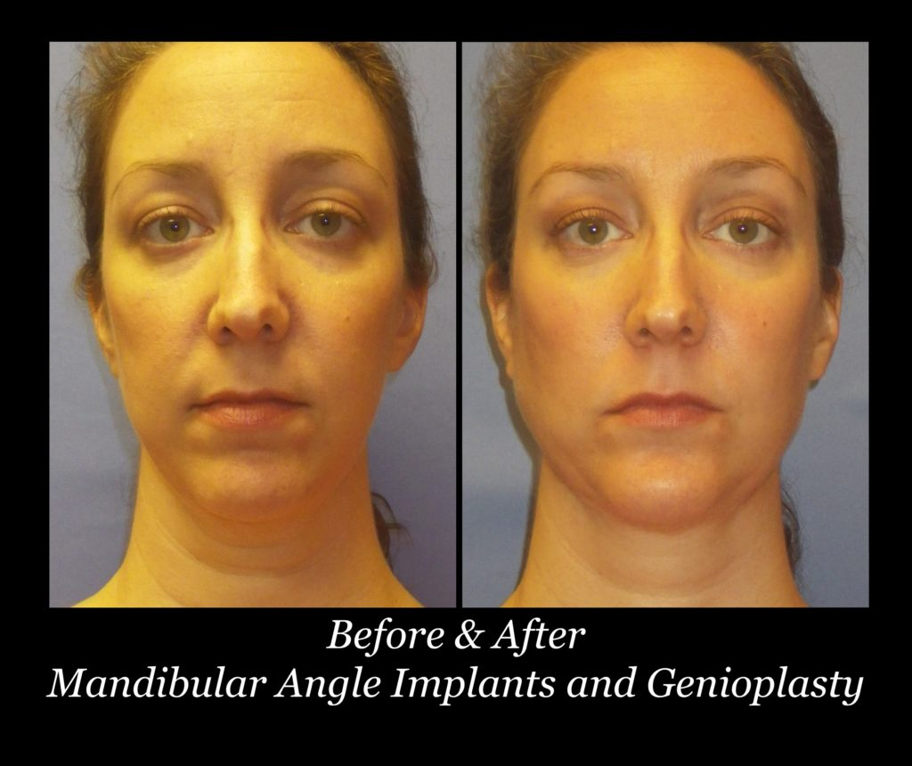 before and after of woman's face with mandibular implants and genioplasty