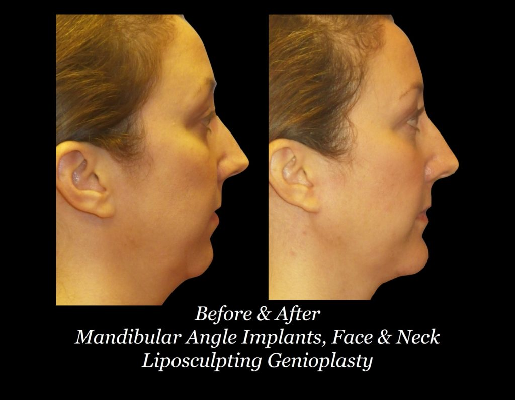 before and after side view of woman with mandibular angle implants, face and neck liposculpting genioplasty