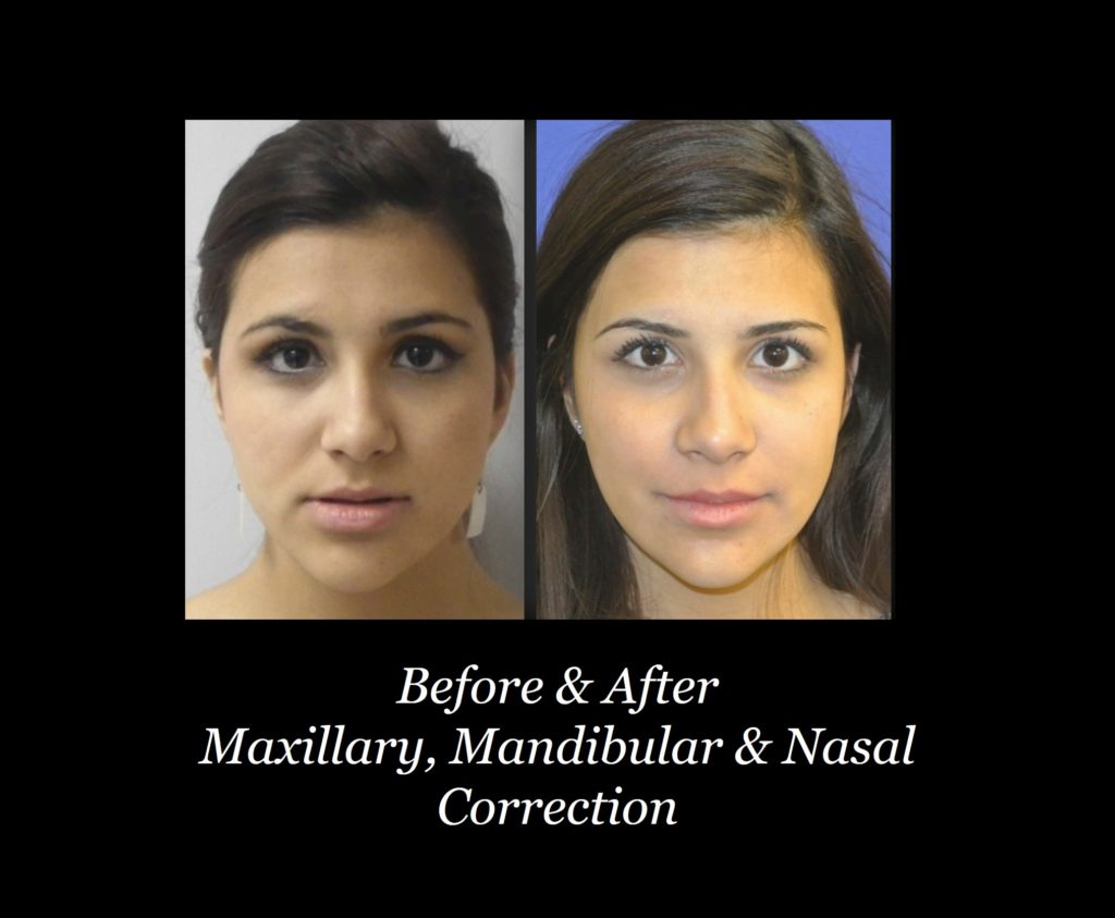 before and after photos of girl with maxillary, mandibular and nasal correction