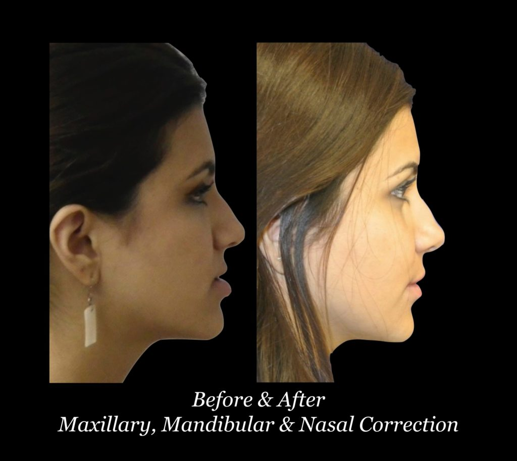 side view of before and after photos of girl with maxillary, mandibular and nasal correction