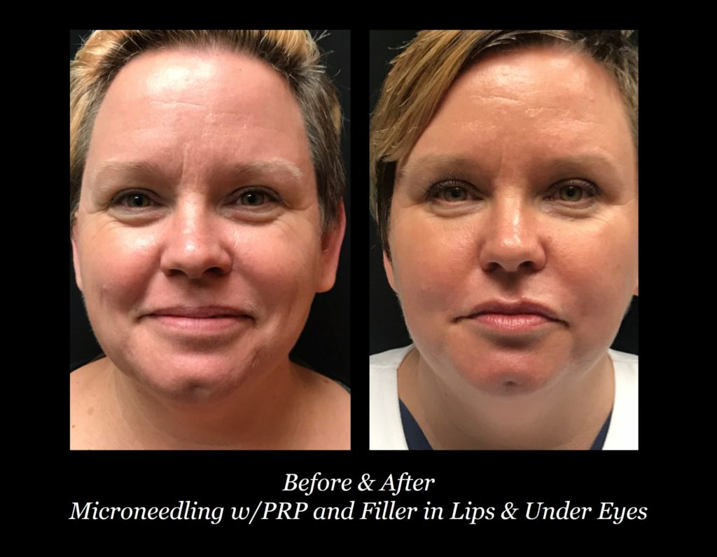 before and after of woman's face with microneedling and lip and under eye filler