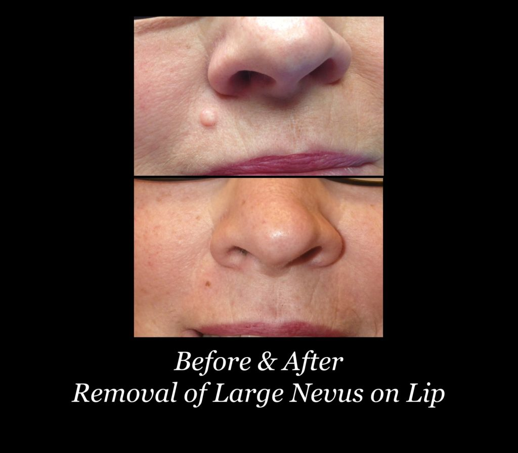 before and after removal of large nevus on lip