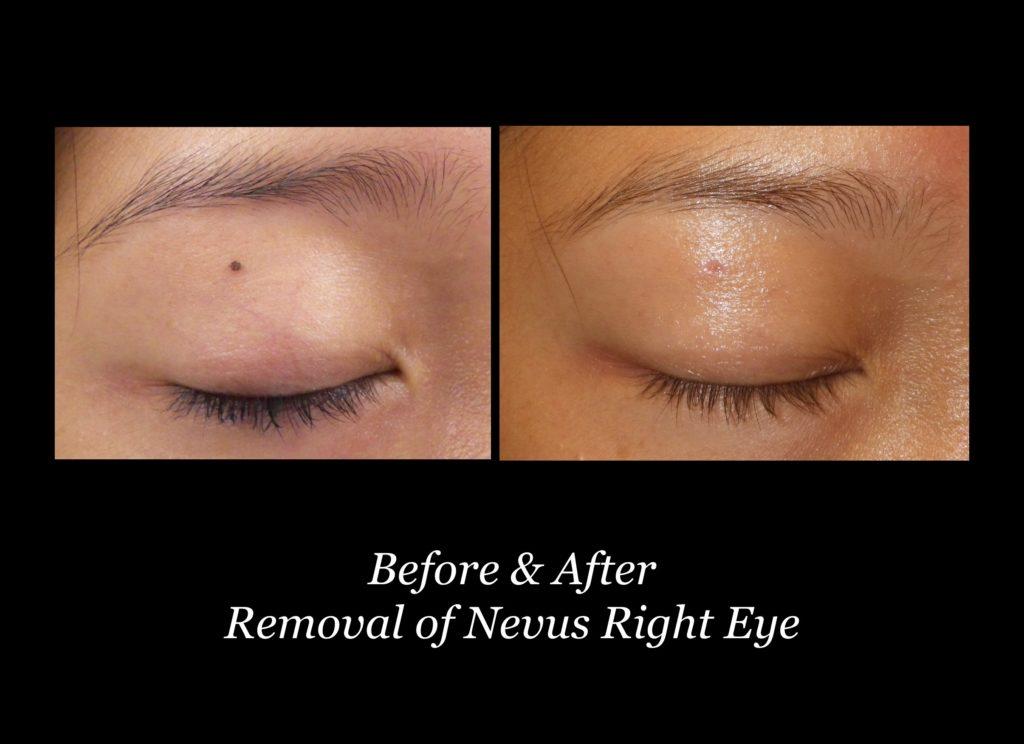 before and after removal of nevus on right eyelid
