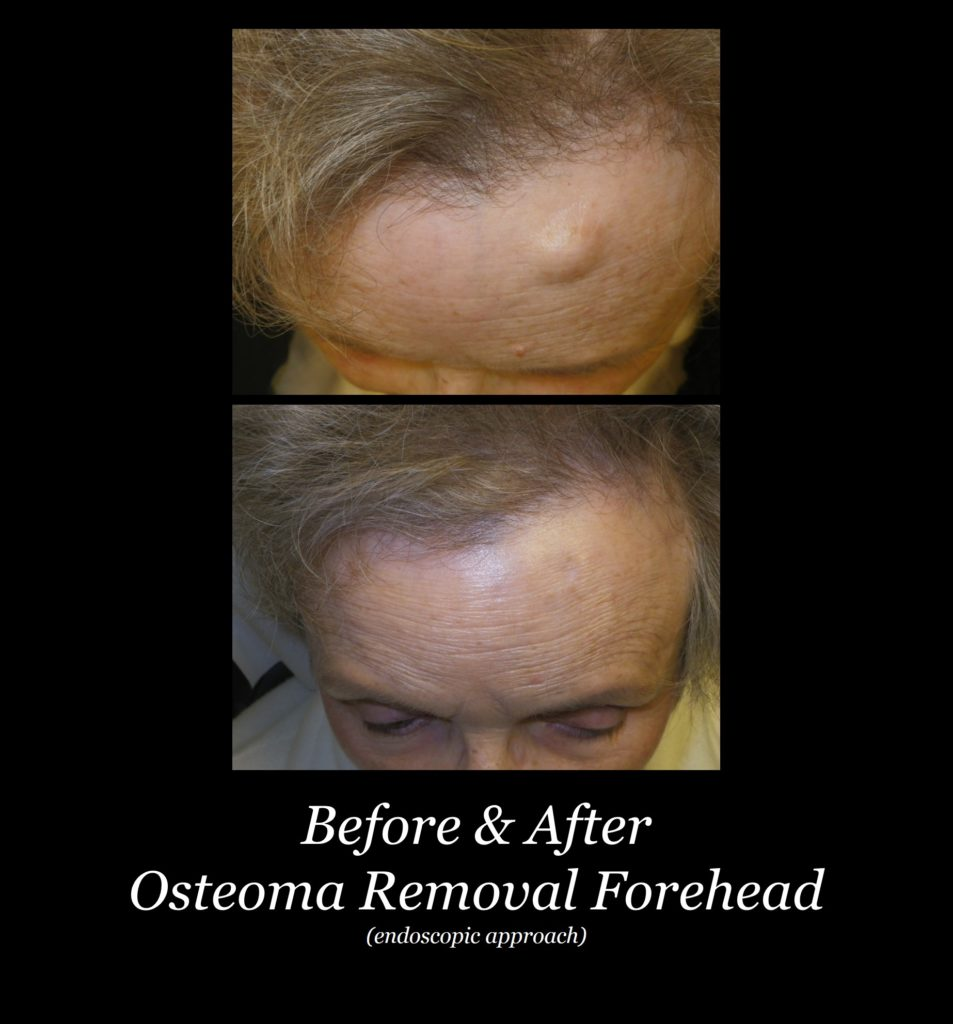 before and after photo of osteoma removal on a woman's forehead