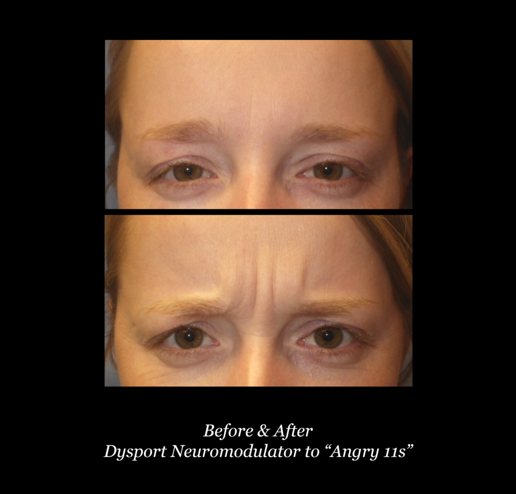 before and after photos of woman's eyes and forehead with dysport neuromodulator