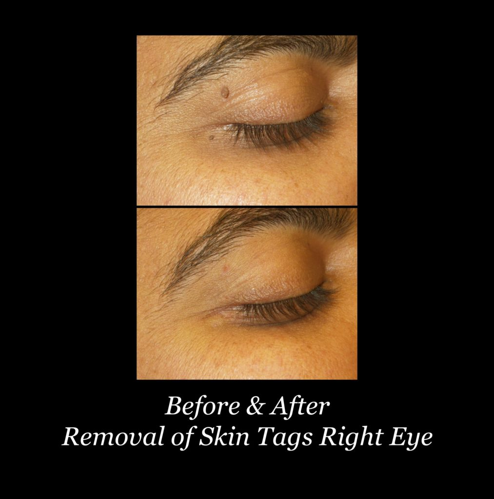 before and after removal of skin tags on right eye