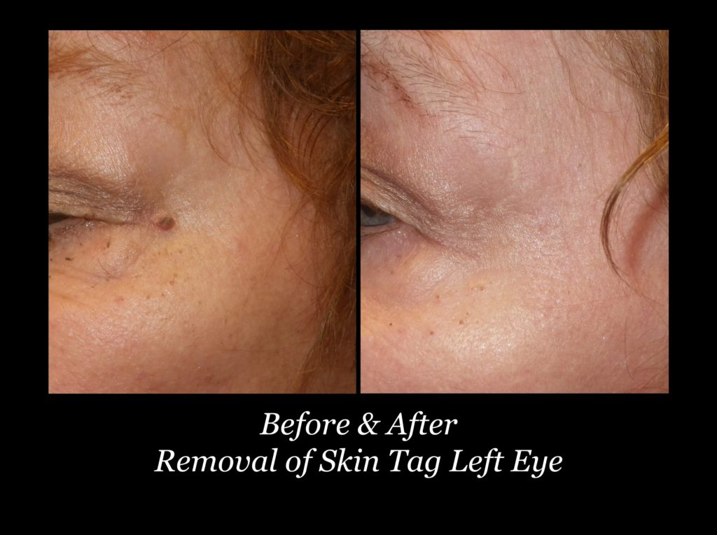 before and after removal of skin tag on left eye