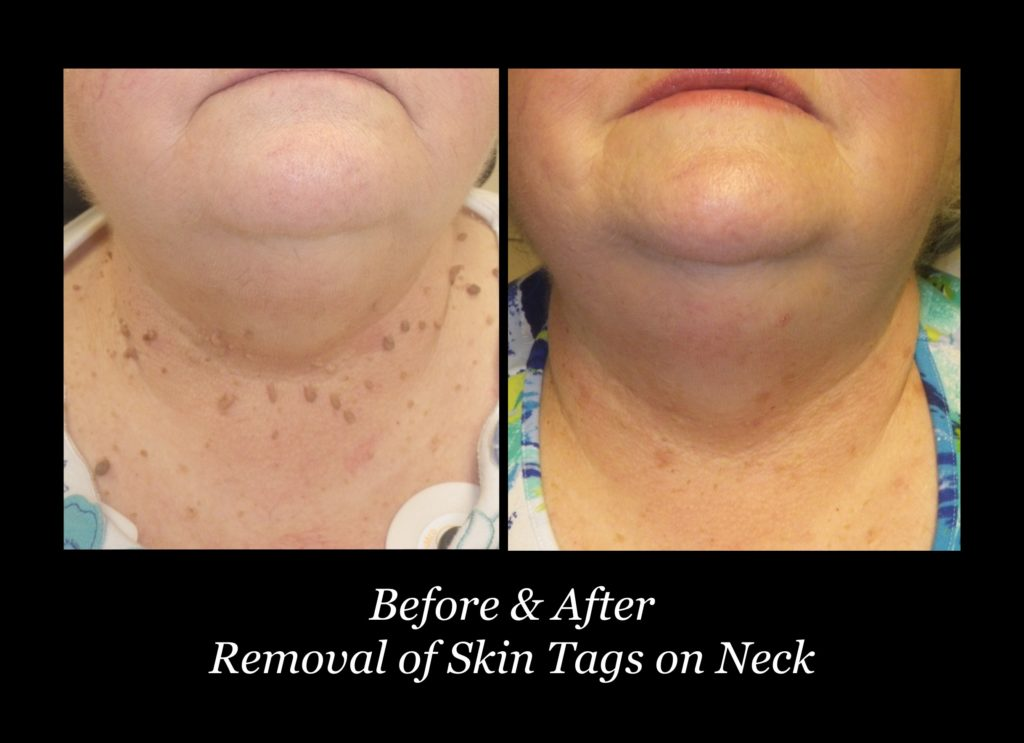 before and after photos of woman's neck and chest with skin tags
