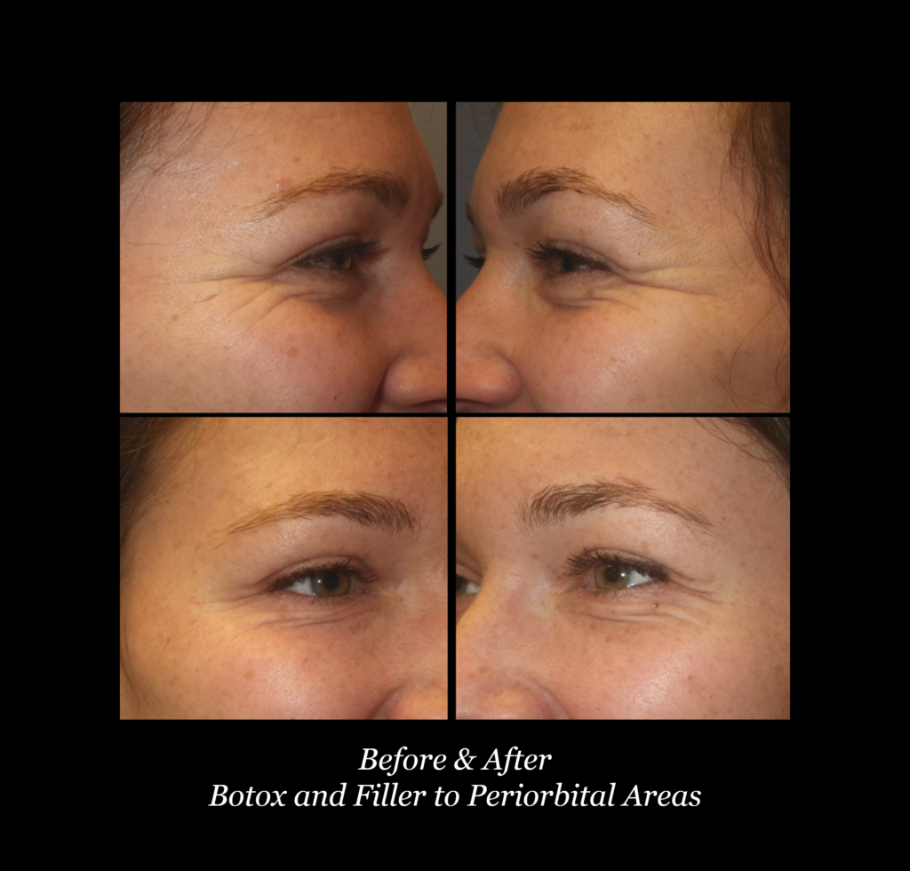 closeup of woman's eyes before and after botox