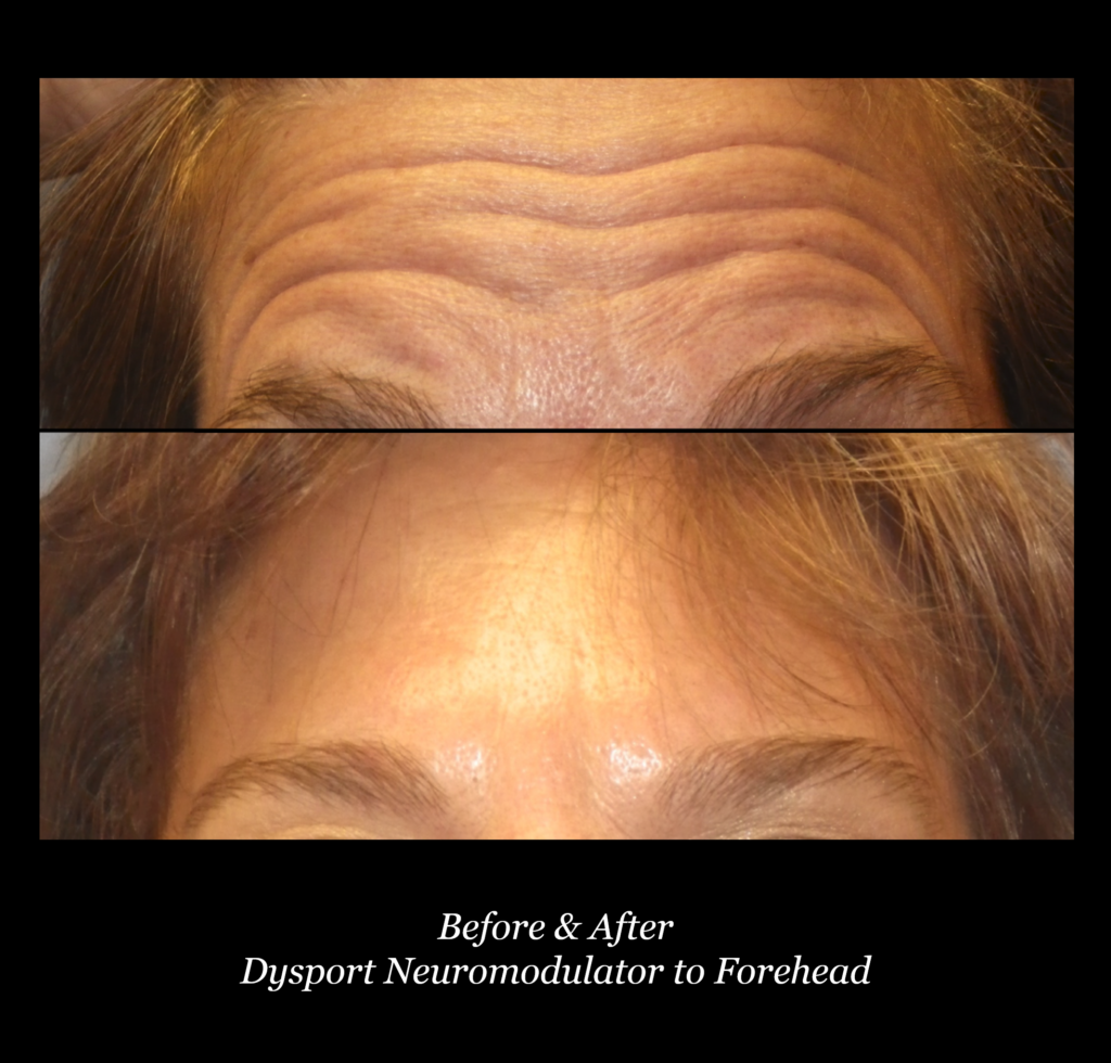 upclose photo of woman's forehead before and after dysport neuromodulator